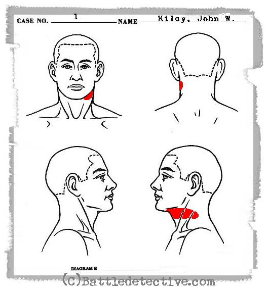 body map for wounds pictures to pin on pinterest